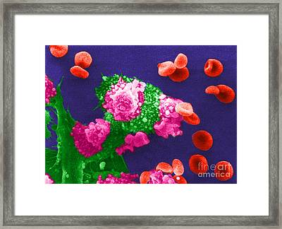 Cancer Cell Death, Sem 3 Of 6 Framed Print by Science Source