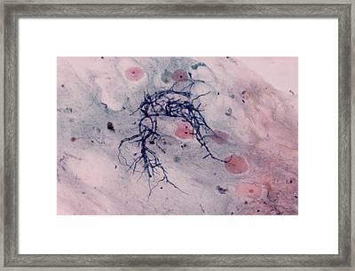 Candida Fungus, Light Micrograph Framed Print