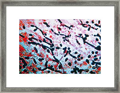 Candidiasis Infection, Lm Framed Print