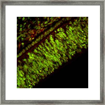 Cell Death Framed Print by David Becker