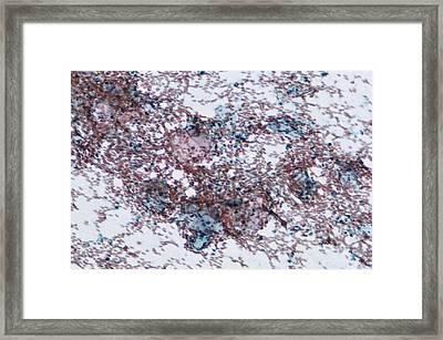 Cervical Smear Containing Blood Framed Print