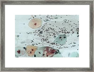 Cervical Smear Containing Sperm Framed Print