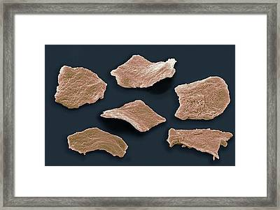 Cheek Squamous Cells, Sem Framed Print by Steve Gschmeissner