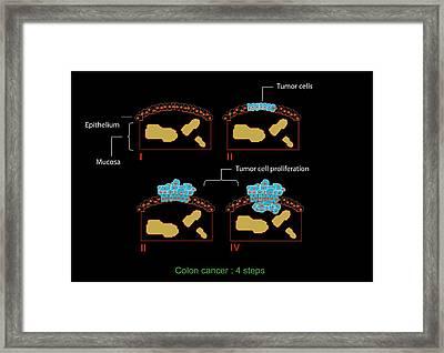 Colon Cancer Stages, Diagram Framed Print by Francis Leroy, Biocosmos