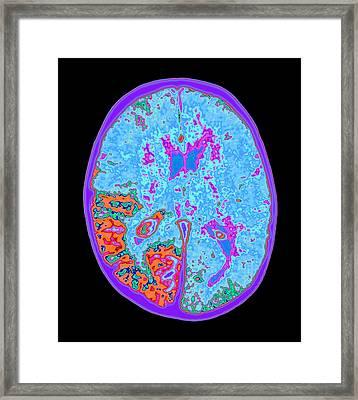 Coloured Mri Brain Scan Of Sturge-weber Syndrome Framed Print by Mehau Kulyk