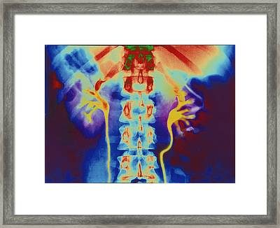 Coloured Urogram X-ray Of Healthy Human Ureters Framed Print