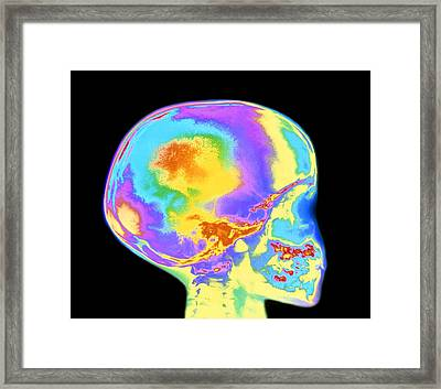 Coloured X-ray Of Child's Skull And Tooth Eruption Framed Print by Mehau Kulyk