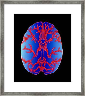 Computer Graphic Of Arteries At Base Of The Brain Framed Print by Pasieka