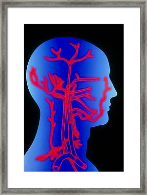 Computer Graphic Of Head & Neck, Showing Arteries Framed Print by Pasieka
