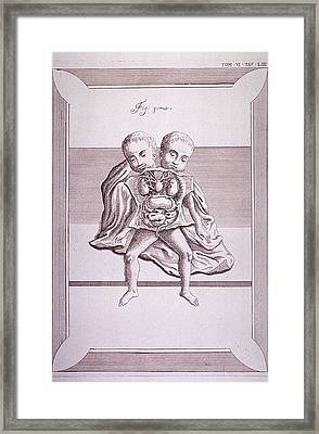 Conjoined Twins With Common Torso Framed Print by Everett