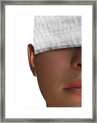 Cosmetic Surgery, Conceptual Artwork Framed Print by Victor Habbick Visions