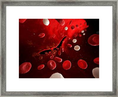Cut Artery, Artwork Framed Print by Sciepro