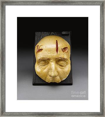 Death Mask, Incision, Laceration Framed Print by Science Source