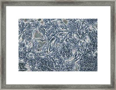 Dental Plaque With Candida, Lm Framed Print