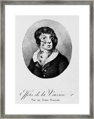 Development Of Smallpox Framed Print