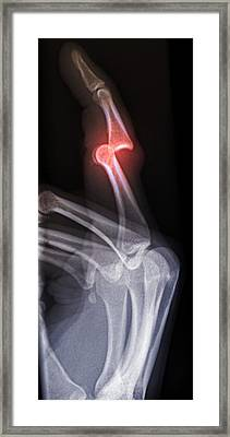 'dislocated Finger, X-ray' Framed Print by Du Cane Medical Imaging Ltd