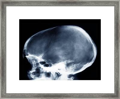 Dolichocephalic Skull Deformity, X-ray Framed Print by Zephyr