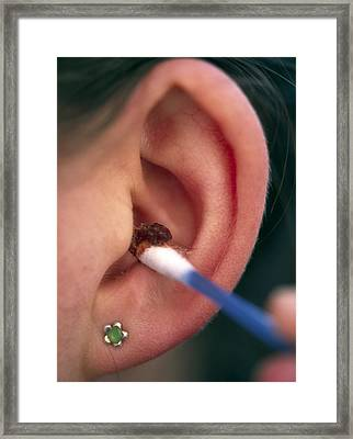 Ear Canal Cleaning Framed Print by Chris Knapton
