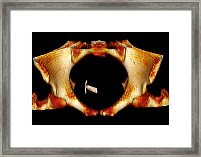 Ectopic Iud Contraceptive, 3d Mri Scan Framed Print by Du Cane Medical Imaging Ltd