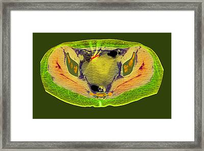 Ectopic Iud Contraceptive, Ct Scan Framed Print by Du Cane Medical Imaging Ltd