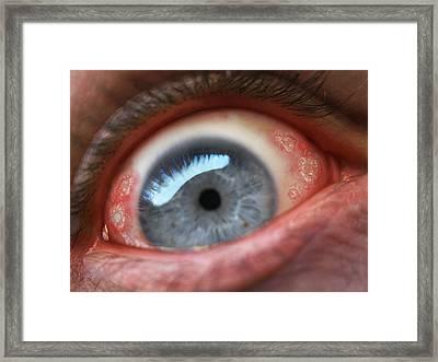 Eyesore Framed Print by Baron Dixon