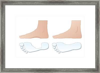 Flat Foot Comparison, Artwork Framed Print by Peter Gardiner