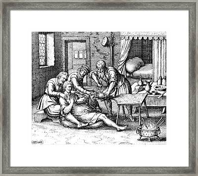 Gangrene Amputation Of Leg, 17th Century Framed Print by Science Source