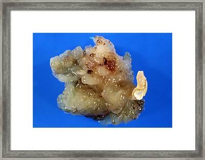 Gross Specimen: Atrial Myxoma, Benign Heart Tumour Framed Print by Dr. E. Walker