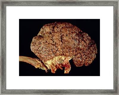Gross Specimen Of Kidney Scarred By Hypertension Framed Print