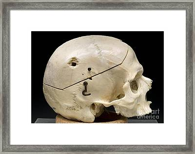 Gunshot Trauma To Skull, 1950s Framed Print by Science Source