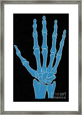 Hand And Wrist Bones Framed Print by Science Source