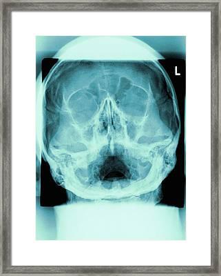 Healthy Skull, X-ray Framed Print