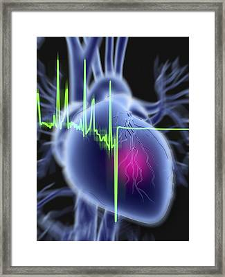 Heart Attack And Ecg Trace Framed Print by Pasieka