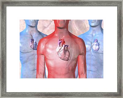 Heart Failure, Artwork Framed Print by David Mack