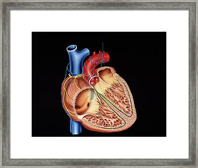 Heart Structure Framed Print by Francis Leroy, Biocosmos
