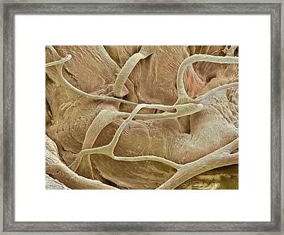Heart Tendons, Sem Framed Print