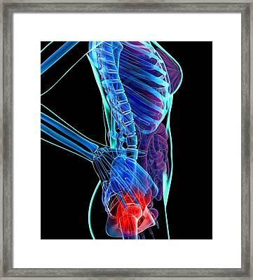 Hip Pain, Conceptual Artwork Framed Print by Roger Harris