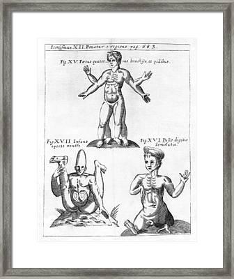 Historical Birth Deformities Framed Print