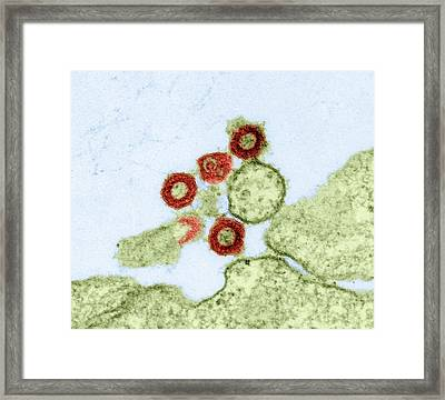 Human Retrovirus, Tem Framed Print by Dr Klaus Boller