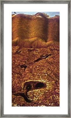 Human Skin, Light Micrograph Framed Print