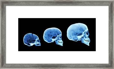 Human Skull Development Framed Print by D. Roberts