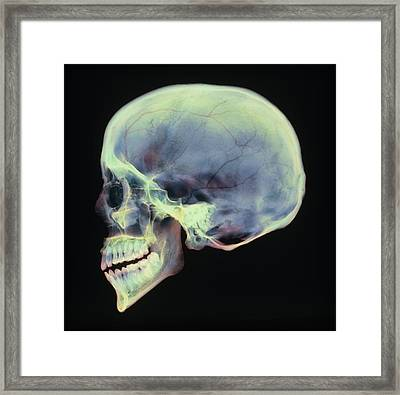 Human Skull, X-ray Framed Print by D. Roberts