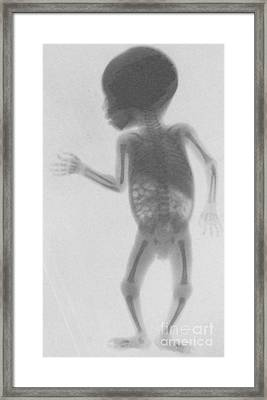 Infant X-ray, 1900 Framed Print