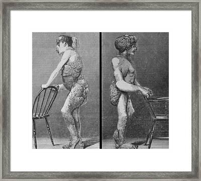Joseph Merrick 1862-1890, Known Framed Print by Everett