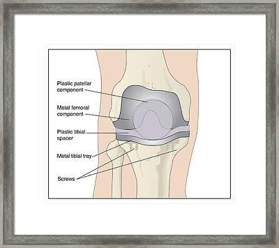 Knee After Knee Replacement, Artwork Framed Print