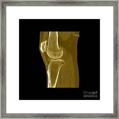 Knee Showing Osteoporosis Framed Print