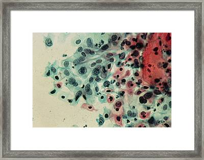 Lm Of A Cervical Smear Showing Moderate Dysplasia Framed Print