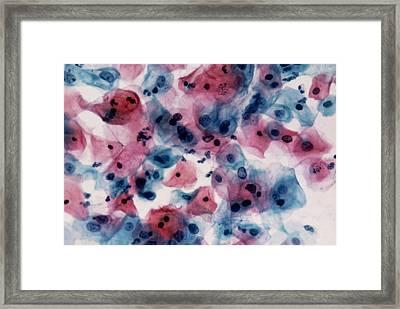 Lm Of Cervical Smear Cells With Mild Dyskaryosis Framed Print