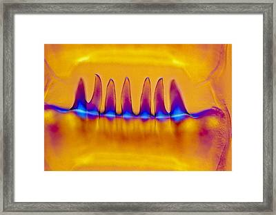 Lm Of Waved Whelk Tooth And Radula Framed Print by Power And Syred