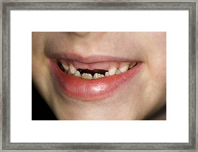 Loss Of Milk Teeth Framed Print by Lawrence Lawry